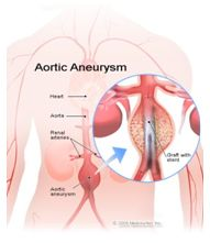 Best Aortic Aneurysm Repair Surgery Hospital India, Aortic Aneurysm Repair Surgery Symptoms, Aneurysm Repair Surgery, Aortic Aneurysm Repair Surgery Hospital India, Low Cost Aortic Aneurysm Repair Surgery India, Aortic Aneurysm Repair Surgery Specialist India, Aortic Aneurysm Repair Surgery Surgeons India