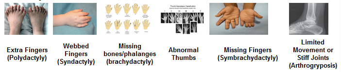 Hand Disorders Are Congenital