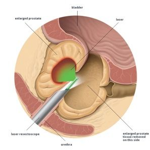 Holmium Laser Enucleation of the prostate