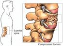 Vertebroplasty & Kyphoplasty