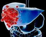 Liver Cancer Treatment and Surgery