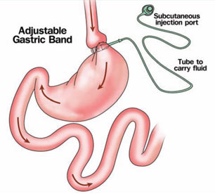 Laparoscopic Gastric Banding Surgery