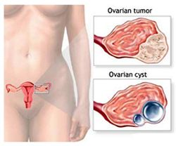Ovarian Cancer  Treatment in India: A woman's lifetime risk of dying from ovarian cancer is 1.1 per cent