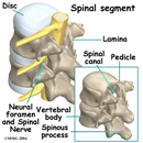 posterior lumbar fusion spondylothesis