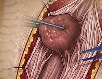 Spine Tumors