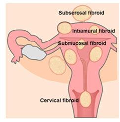 Laproscopic Fibroids Treatment