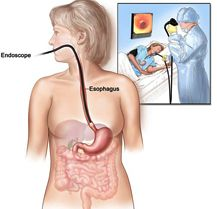 Esophageal Cancers Diagnosed