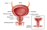 Bladder Cancer Treatment