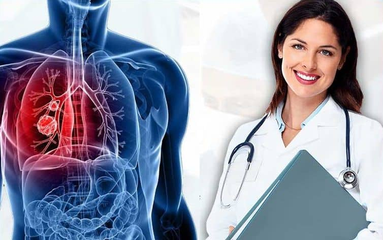 Lung Cancer Treatment in India – Are you aware that it is the leading cause of cancer death in the world?