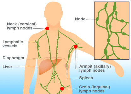 hodgkin cancer cure)