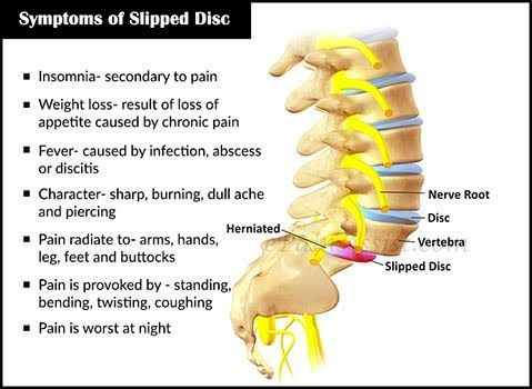 cause of slipped disc