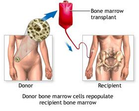 Pediatric Bone Marrow Transplant