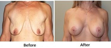Cosmetic Surgery Outcomes