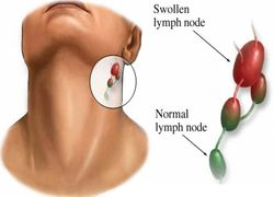 Diagnosis of Lymphoma Cancer