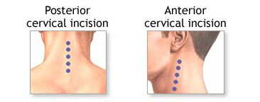 Cervical Discectomy