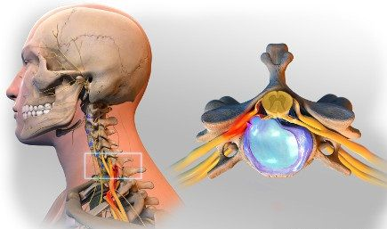 Spine Surgery For Herniated Disc Best Hospitals India