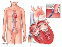 Radio Frequency Catheter Ablation