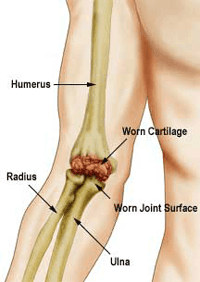 Elbow Joint Replacement Surgery