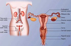 Uterine Cancer Treatment in India