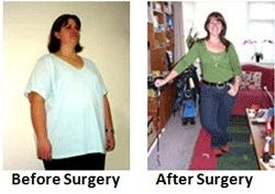gastric bypass surgery, gastric bypass weight loss, roux-en-y gastric bypass surgery, laparoscopic gastric bypass surgery, laparoscopic gastric bypass, gastric bypass surgical procedure
