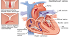 Cardiac Valve Replacement Surgery in india