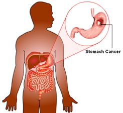 Stomach Cancers Diagnosed