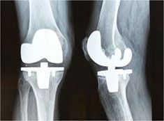 Next Generation Knee Implants results in faster recovery