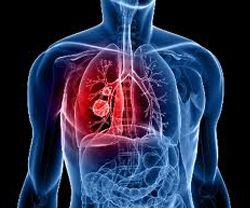 Lung Cancer Treatment at Best Cancer Hospitals in India