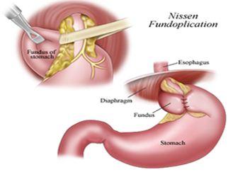 Laparoscopic Hiatal Hernia Surgery