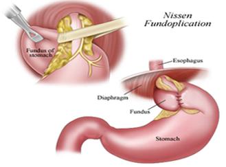 Laparoscopic Hiatal Hernia Surgery