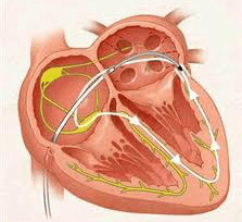 Affordable Radiofrequency Catheter Ablation Treatment In India