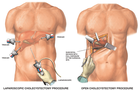 Robotic Prostate Surgery