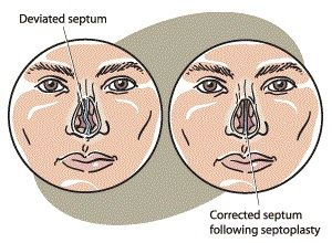 Septoplasty Procedure Description