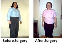 laparoscopic sleeve gastrectomy surgery, sleeve gastrectomy surgery, weight loss surgery, sleeve gastrectomy before and after, weight reduction surgery, bariatric surgery sleeve gastrectomy, gastric sleeve weight loss, gastrectomy surgery