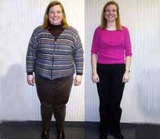 Minimally invasive weight loss surgery in india