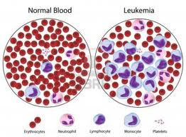 Leukemia Treatment at World Class Hospitals in India