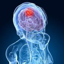 Advantages of Next Generation Technology over Conventional Neurosurgery to Remove Brain Tumor – MRI Guided Brain Tumor Surgery