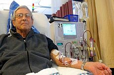 Why it's a Better to go for Kidney replacement Surgery than Dialysis ?