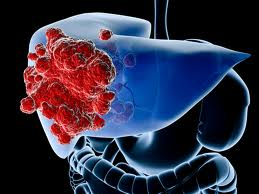 What's New Research and Treatment for Liver Cancer
