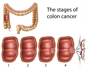 Risk Factors for Colon Cancer – Colon Cancer  Treatment in India