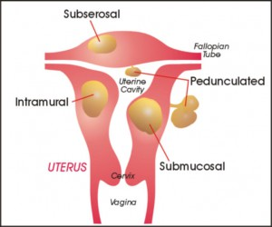 Non-Surgical Cure for Uterine fibroids at World Class Hospitals in India
