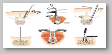Types of Minimally Invasive Spine Surgery at World Class Hospitals in India