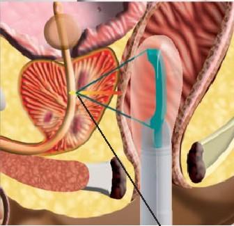 hifu prostate recovery)