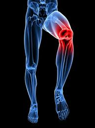 Should you have both knees replaced at one time, or separately