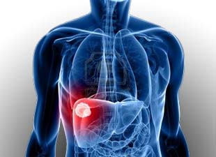 What is Liver Cancer? What are the Liver Cancer Treatment Options in India?