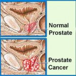 How to lower your chances of suffering from Prostate Cancer
