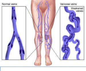 Modern Non-Surgical Treatment for Varicose Veins in India
