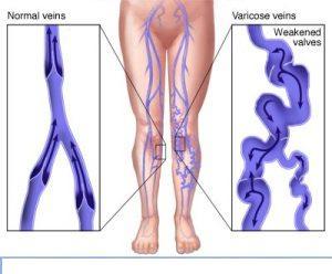 varicose vein treatment in india
