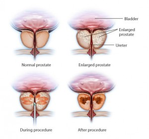 Enlarged Prostate Prostate Cancer Treatment Hospital India