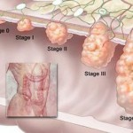 How to Recognize Colon Cancer Symptoms and Treatment Options available for Colon Cancer in India